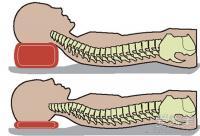 8cm枕头+颈部操 5招防止颈纹产生