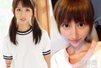 日本20岁少女 减肥+整容失败神似怪物