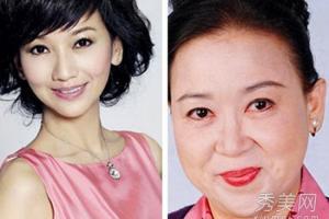 同龄女星容貌差太多 化妆or整容?