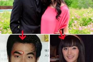 """刘恺威""""被整容"""" 面部5处整容对比照"""