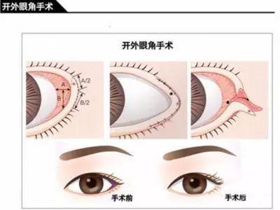 鸟哥说:眼睛美丽的秘密(下篇)—内外眼角,眼睑下至,倒睫手术